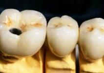 coronal im Abutment verschraubte MK-Krone neben MK-Kronen auf natürlichen Zähnen