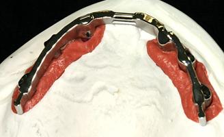NE-Steg auf Implantaten